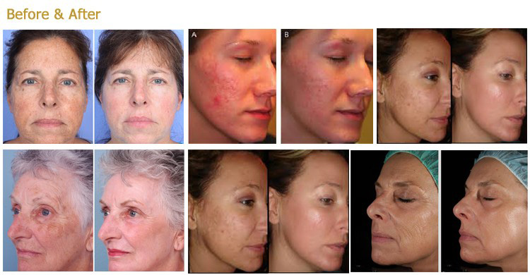 1550nm diode laser treatment before and after