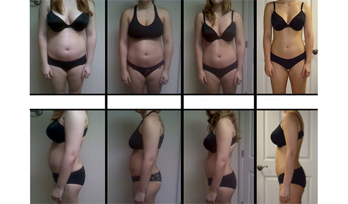 Body Slimming Treatment Before and After