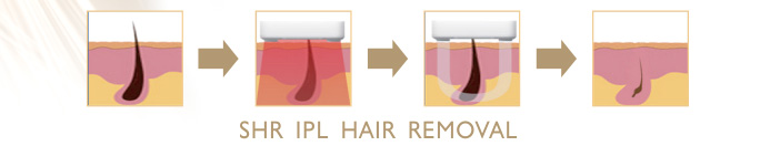 SHR IPL Hair Removal Principle