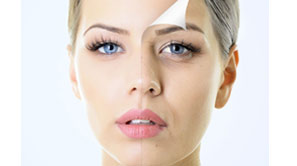 Anti-aging( Wrinkle Removal, Skin Tightening, Face lift)