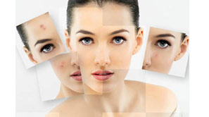 Scar and Acne Scar Removal