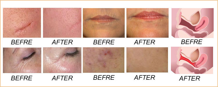 Fractional CO2 Laser Treatment Before and After