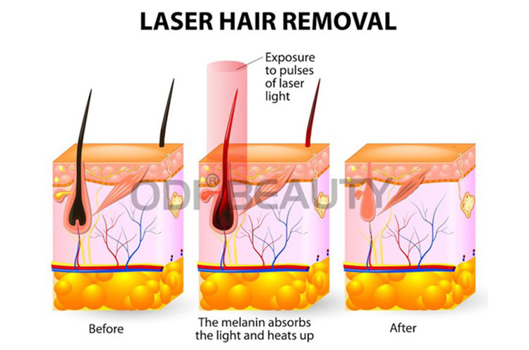 Working Principle of 808nm diode laser hair removal