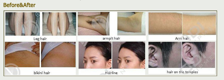 808 Diode Laser Hair Removal Treatment Before and After