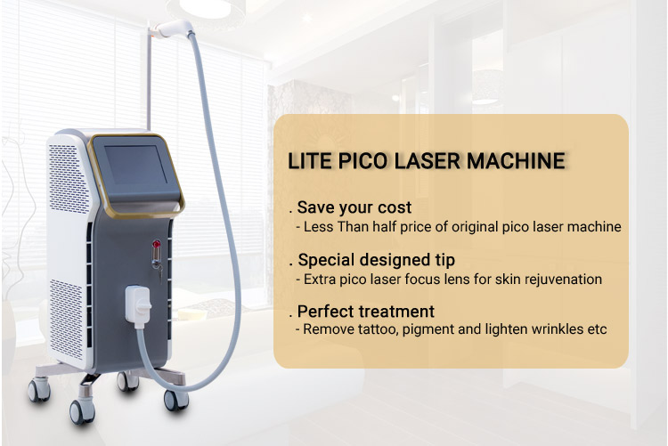 lazer tattoo removal equipment