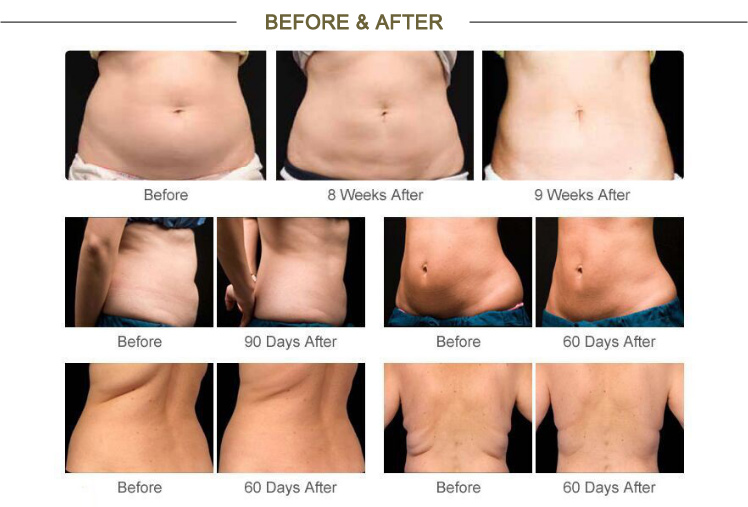velashape body slimming, weight loss, body shape
