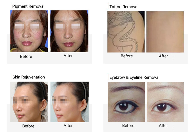 before & after of yag laser machine