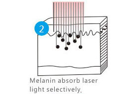 melanin absorb laser light selectively