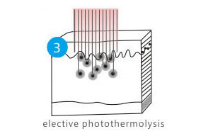 elective photothermolysis