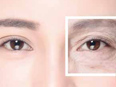 Collagen Regeneration for Eyes Corner