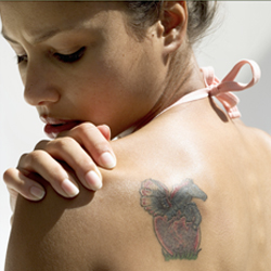Lastest Technology For Laser Tattoo Removal
